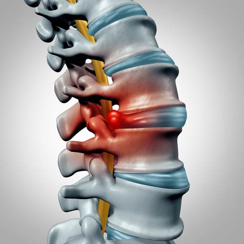 A well-aligned spine is needed to avoid pinched nerves.